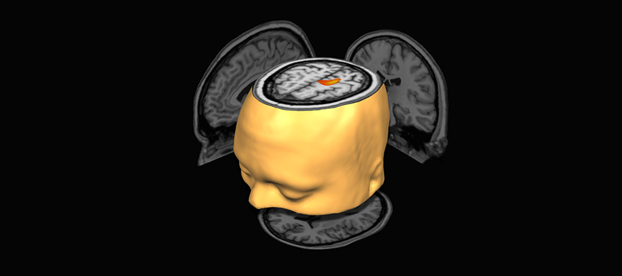Cerebral Graphic
